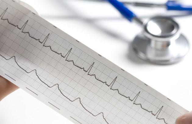 Cardiologia a Cava De Tirreni