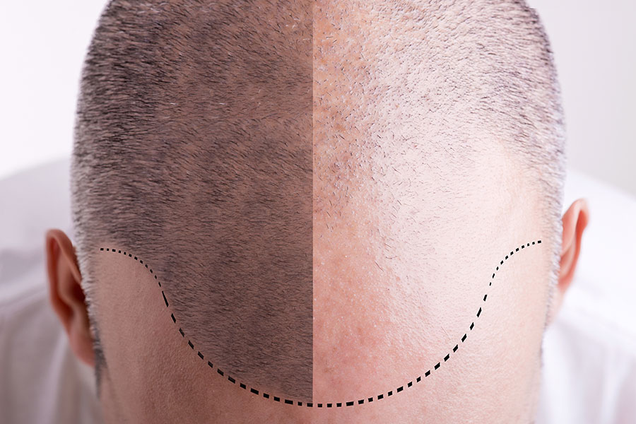 Trapianto capelli con tecnica FUE